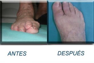 Cirugía de juanetes y dedo en garra